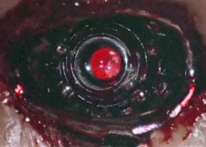 Глаз Терминатора